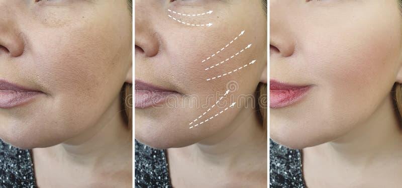 L'adulto della donna si corruga prima dopo i risultati di contrasto di cosmetologia di effetto del collage di ringiovanimento di  fotografia stock