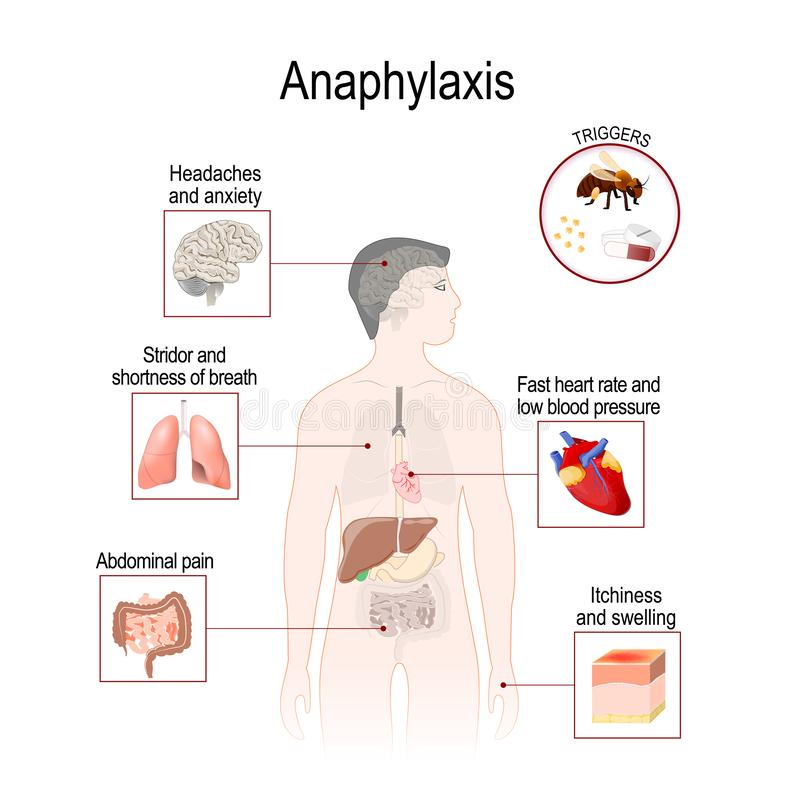 L'anafilassi è una reazione allergica seria che può causare la morte royalty illustrazione gratis