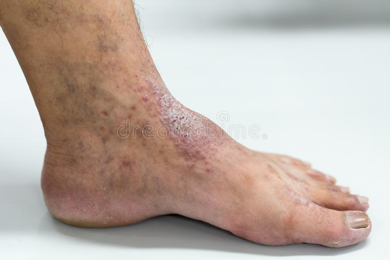 L'ANNONCE de dermatite atopique, également connue sous le nom d'eczema atopic, est un type d'inflammation de la dermatite de peau photographie stock libre de droits