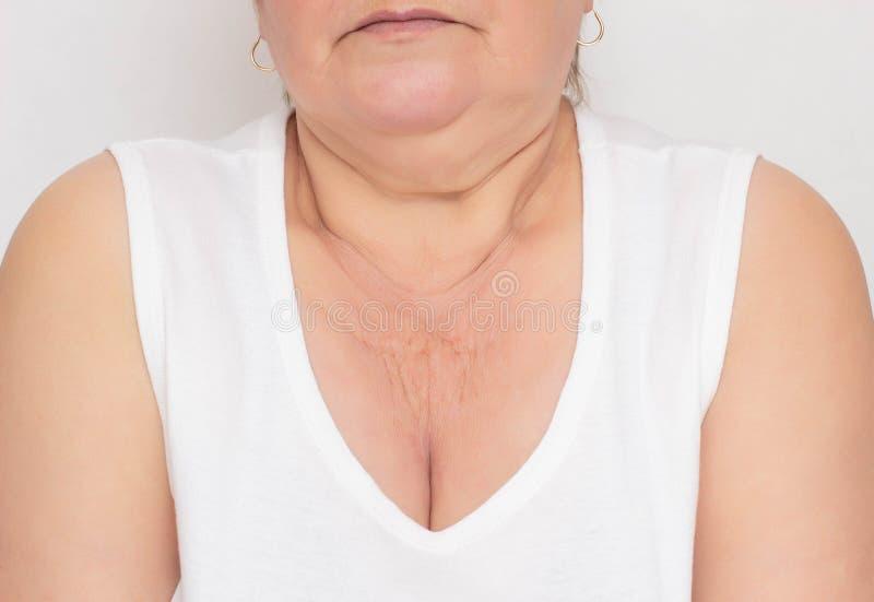 L'endroit problématique pour une femme est peau sèche et froissée dans la zone de decollete pour une femme, fond blanc, cosmétolo photos stock