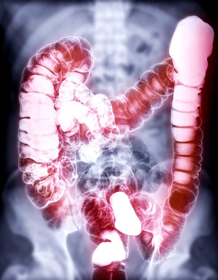 L'enema del bario o BE è l'immagine di un grande intestino fotografie stock