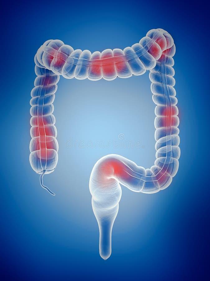 L'gros intestin illustration stock