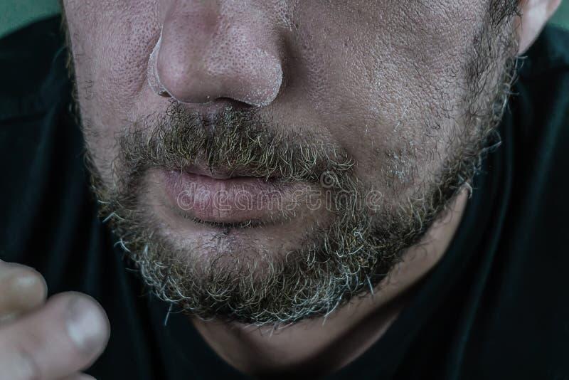 L'homme essuie son nez après cocaïne photos libres de droits