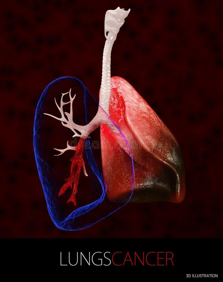 l'illustrazione 3d del cancro polmonare, versamento pleurico ha isolato il nero illustrazione di stock
