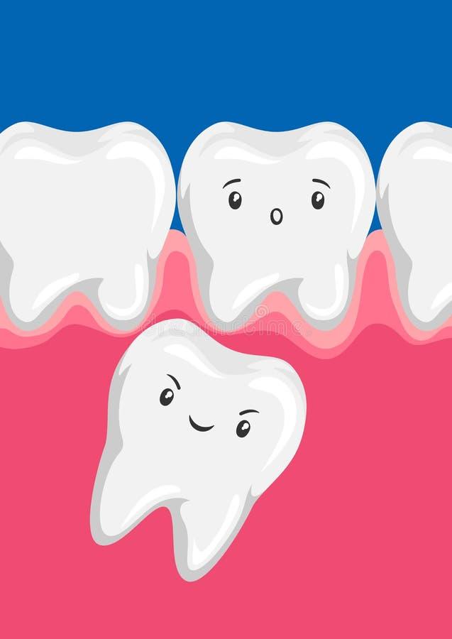 L'illustrazione di molare schiaccia fuori il dente da latte royalty illustrazione gratis