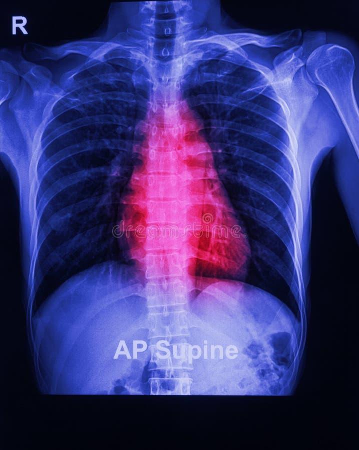 L'image de rayon X d'un coffre humain image libre de droits