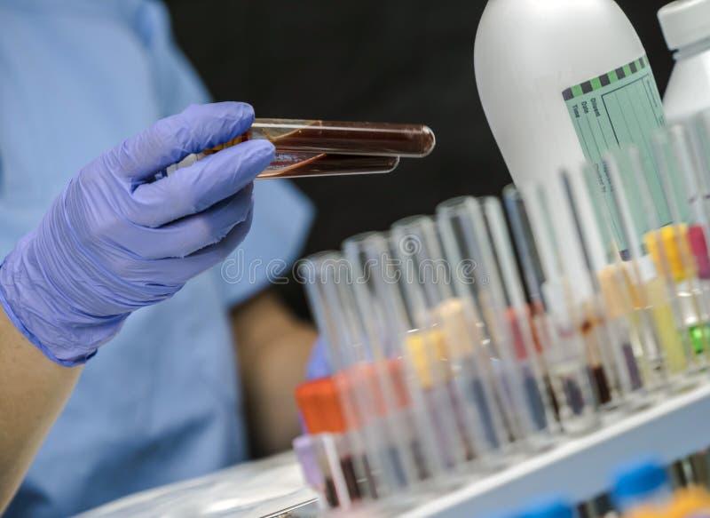 L'infirmière prélève des prises de sang dans un hôpital images libres de droits
