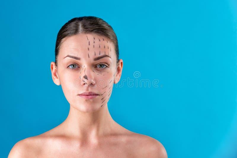 L?neas de la correcci?n del drenaje del Beautician en cara de la mujer Antes del operetion de la cirug?a pl?stica Aislado en azul foto de archivo libre de regalías