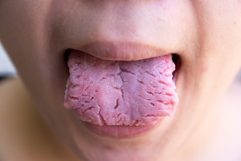 A l?ngua da doen?a da infec??o bacteriana, a l?ngua ? tordo Ferida da l?ngua L?ngua fendida foto de stock