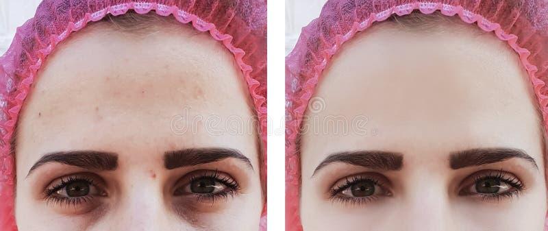 L'oeil femelle ride des cercles avant et après la cosmétologie de traitements photographie stock libre de droits