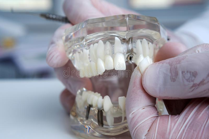 L'ortodontista tiene un modello dei denti con gli impianti in sua mano e mostra come inserire il dente Fine in su Macro immagine stock libera da diritti