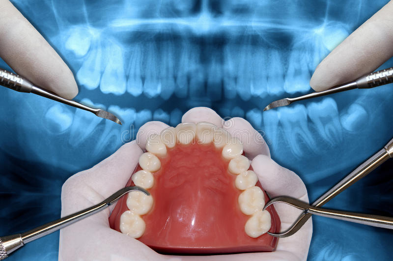 L'ortodonzia foggia la simulazione della chirurgia immagine stock libera da diritti