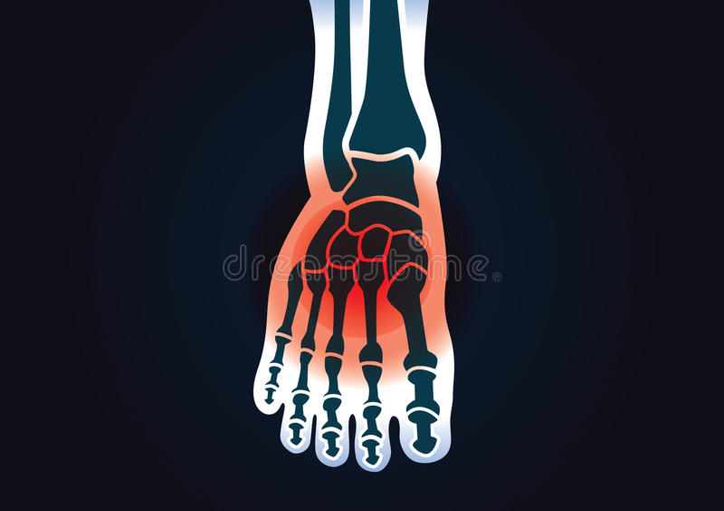 L'osso di piede umano ha un segnale rosso illustrazione di stock
