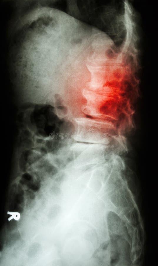 L-S van de Spondylolisthesisfilm x-ray stekelzijde (lumbaal-sacrum) van oude oude patiënt royalty-vrije stock foto's