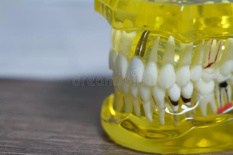 L'?tudiant dentaire d'art dentaire de dent apprenant les dents mod?les de enseignement d'apparence, racines, gommes, maladie des  photographie stock libre de droits