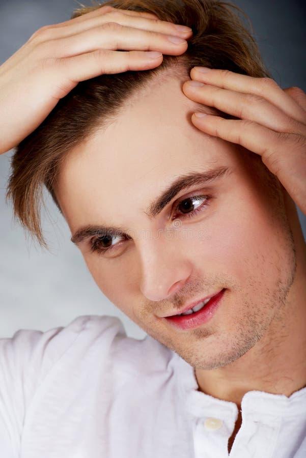 L'uomo è si è preoccupato per perdita di capelli immagini stock