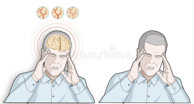 L'uomo ottiene l'emicrania - concetto di emicrania e di sanità - illustrazione illustrazione vettoriale