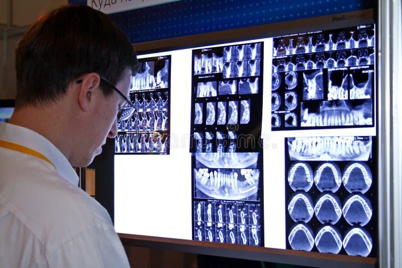 L'uomo sembra i raggi X dentali immagini stock