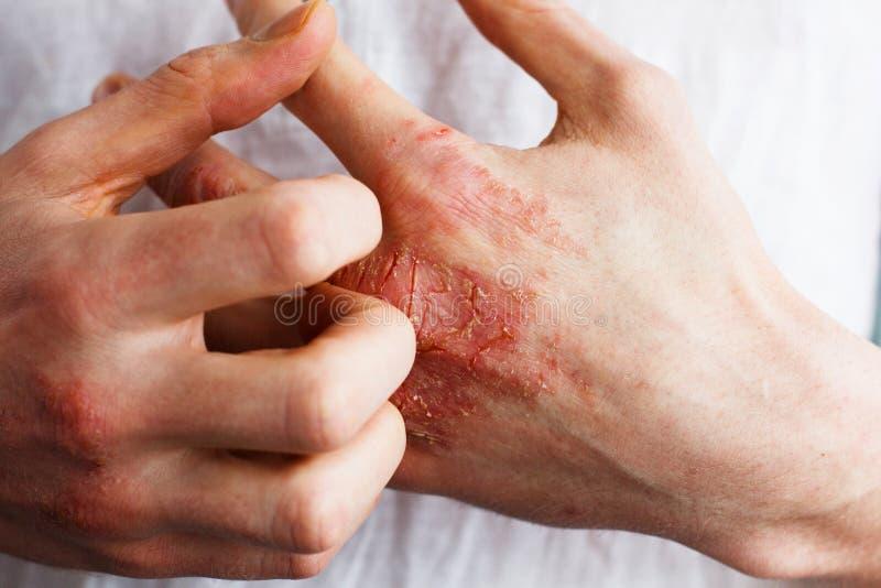 L'uomo si graffia, la pelle a fiocchi asciutta a disposizione con la psoriasi vulgaris, l'eczema ed altre condizioni della pelle  immagine stock