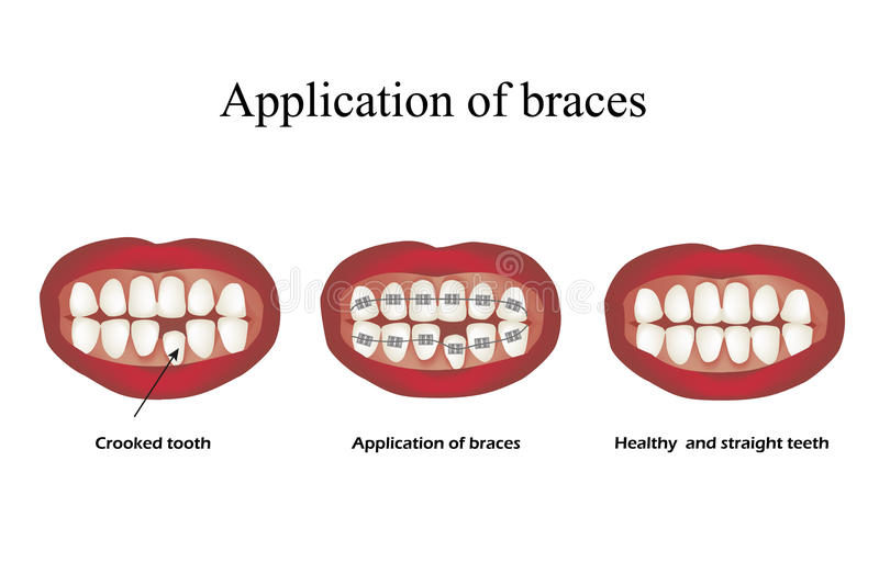 L'utilisation des accolades Dents courbées orthodonties Infographie Illustration de vecteur sur le fond illustration de vecteur