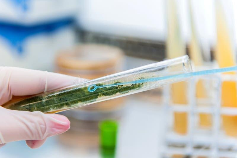 Laço e molde da microbiologia foto de stock