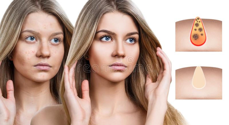 La bella donna mostra come inquinare e pulire i pori sul fronte immagini stock