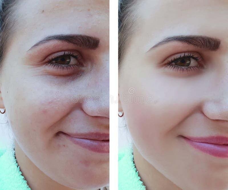 La bella ragazza si corruga, rimozione dell'acne sul fronte prima e dopo le procedure fotografia stock libera da diritti