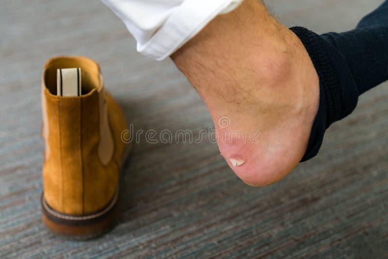 La blessure douloureuse de talon équipe dessus des pieds provoqués par de nouvelles chaussures Ter criqué photos libres de droits