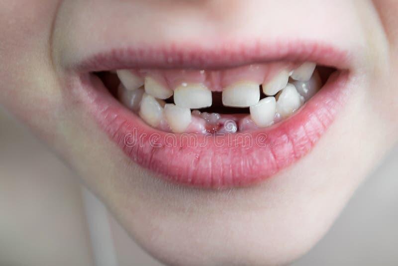 La boca abierta del niño Dos filas de dientes En el ro de la parte inferior fotografía de archivo libre de regalías