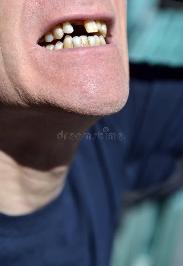La boca que falta el diente delantero que aguarda el implante en varón mayor citize fotos de archivo libres de regalías