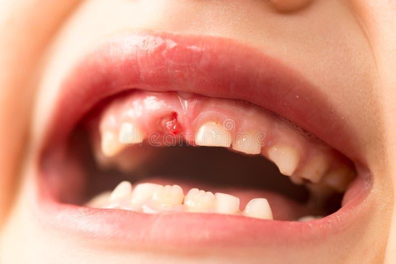 La bocca di un ragazzo senza un dente fotografie stock