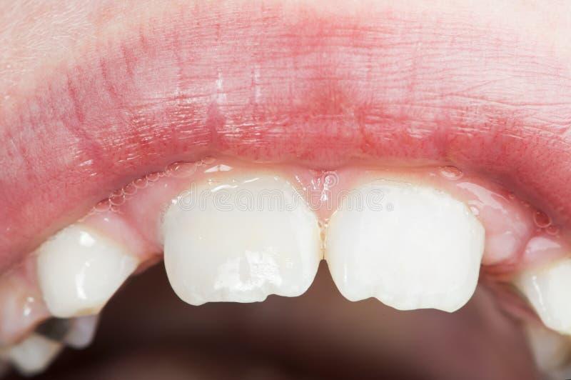 La bocca ed i denti dei bambini fotografia stock