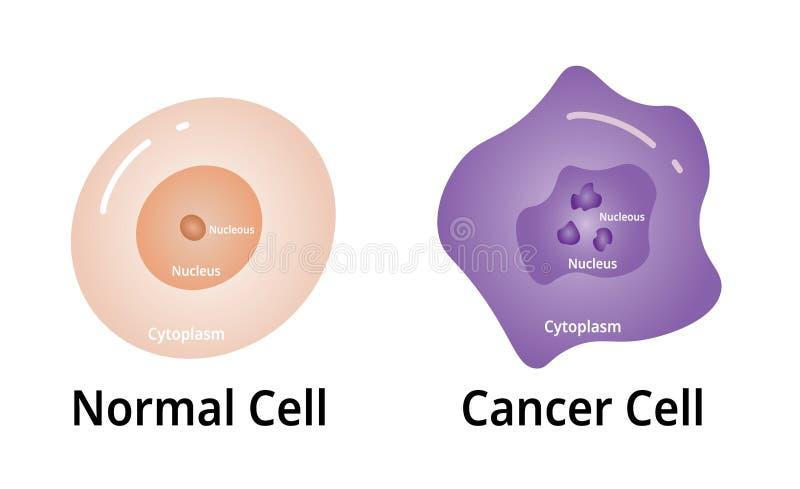 La célula de Cencer, con la célula normal compara, vector del ejemplo ilustración del vector