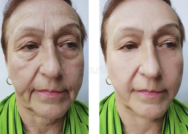 La cara arruga a la mujer mayor antes y después de procedimientos del efecto fotografía de archivo
