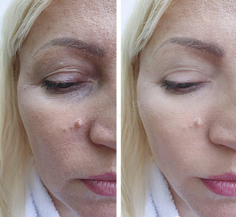 La cara caucásica de la mujer arruga resultado antes y después de arrugas de la cara del resultswoman de los procedimientos del t fotos de archivo libres de regalías
