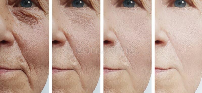 La cara de la mujer arruga al cosmetólogo de la diferencia de la corrección antes y después del rejuvenecimiento del tratamiento  imagenes de archivo