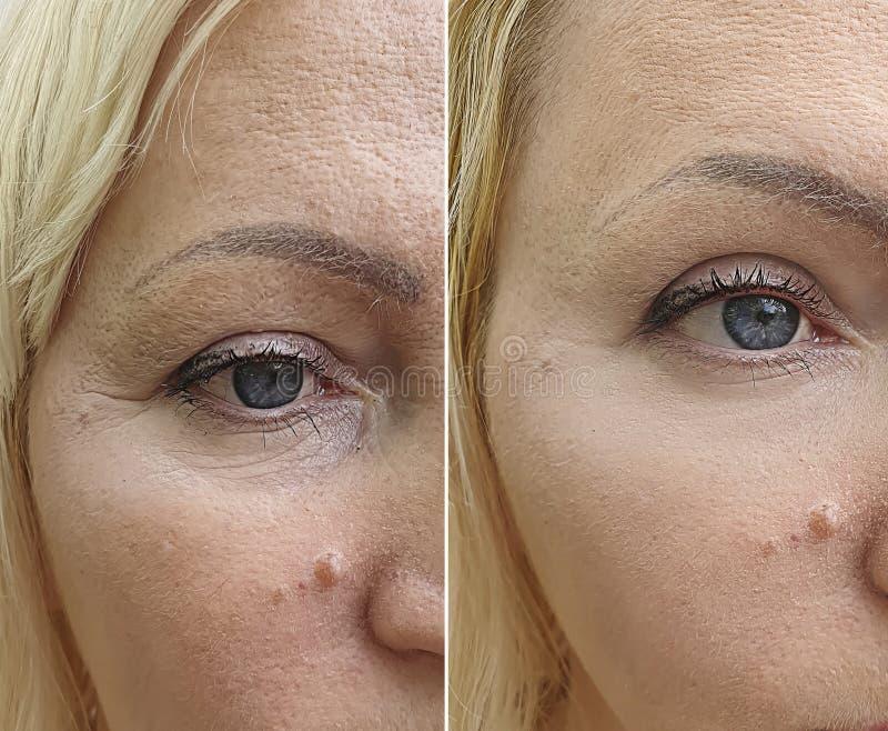 La cara de la mujer arruga antes después de la tensión de la corrección del rejuvenecimiento de la diferencia del cosmetólogo imagenes de archivo