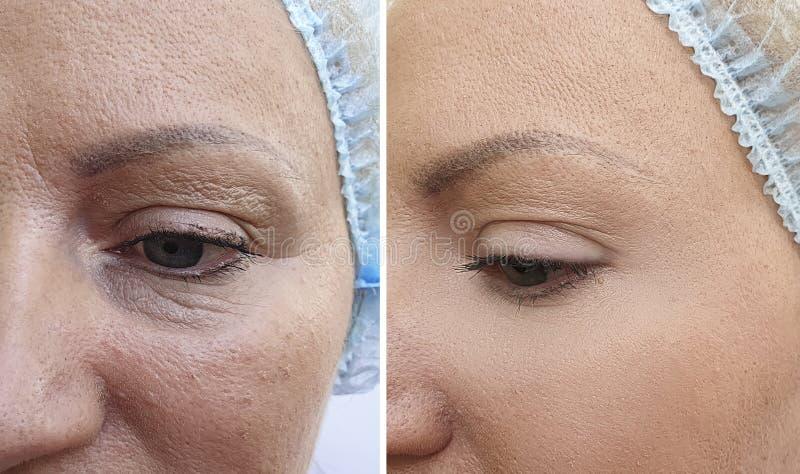 La cara de la mujer arruga antes después de la tensión de la corrección del rejuvenecimiento de la diferencia del cosmetólogo del fotos de archivo libres de regalías