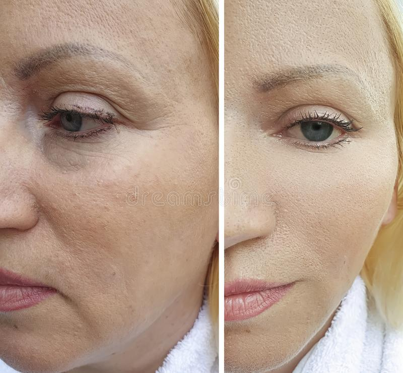La cara de la mujer arruga antes después de la tensión de la corrección del rejuvenecimiento de la diferencia del cosmetólogo del imagen de archivo