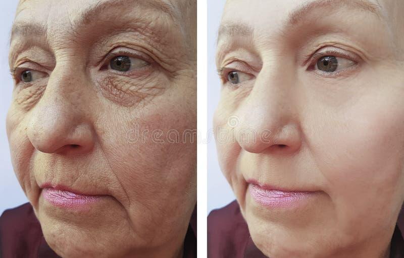 La cara de la mujer mayor arruga contraste antes y después de procedimientos fotografía de archivo libre de regalías