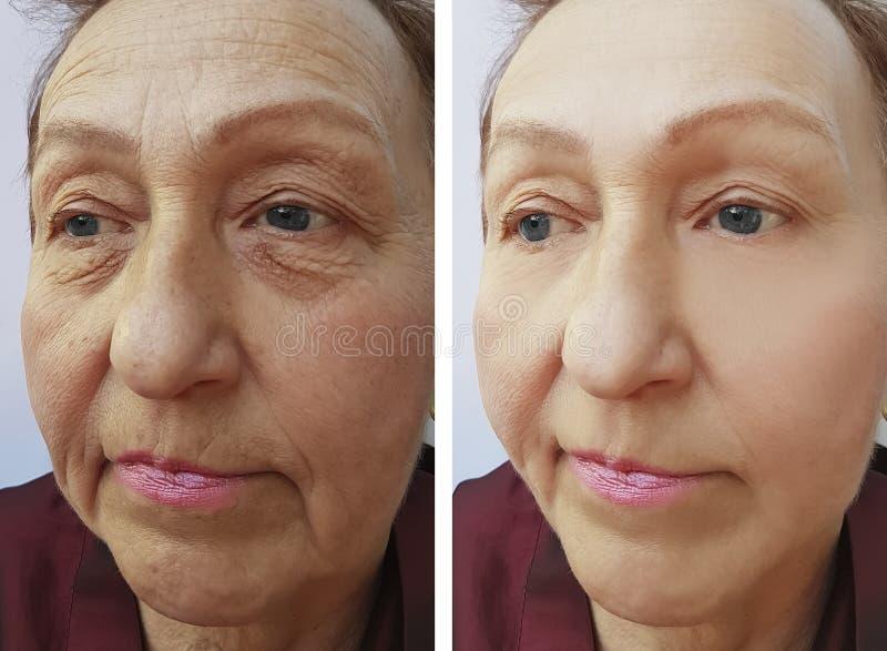 La cara de la mujer mayor arruga resultados maduros pone en contraste antes y después de procedimientos imagen de archivo libre de regalías