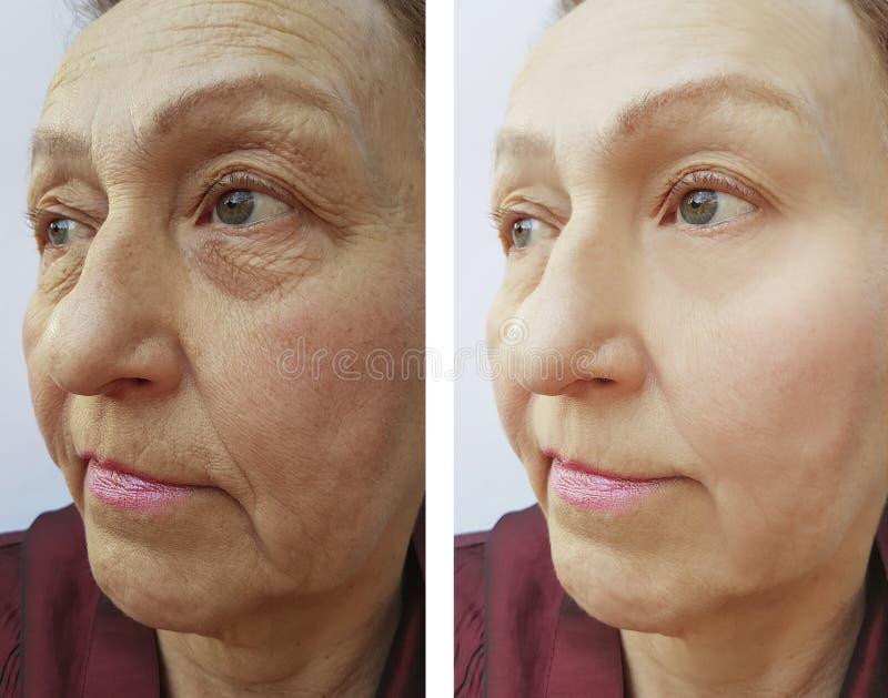 La cara de la mujer mayor arruga resultados pone en contraste antes y después de procedimientos imagen de archivo libre de regalías