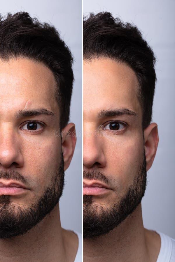La cara del hombre antes y después del procedimiento cosmético imagen de archivo libre de regalías