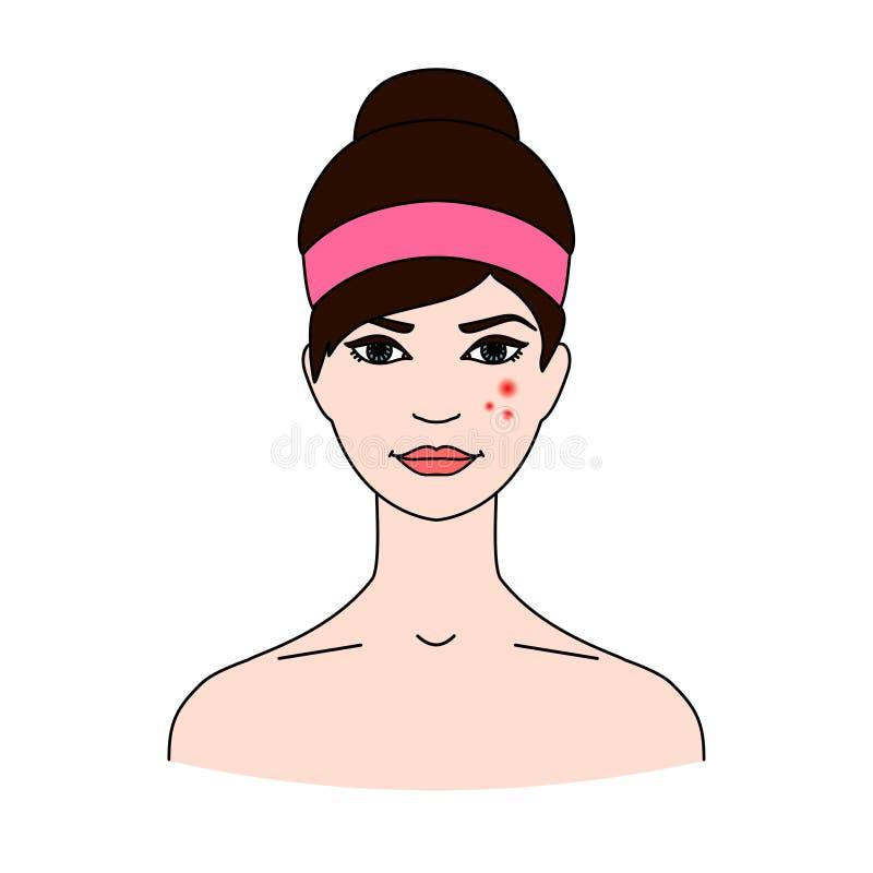 La cara del ` s de la mujer con acné El concepto de problemas de salud de la piel Enfermedades dermatológicas stock de ilustración