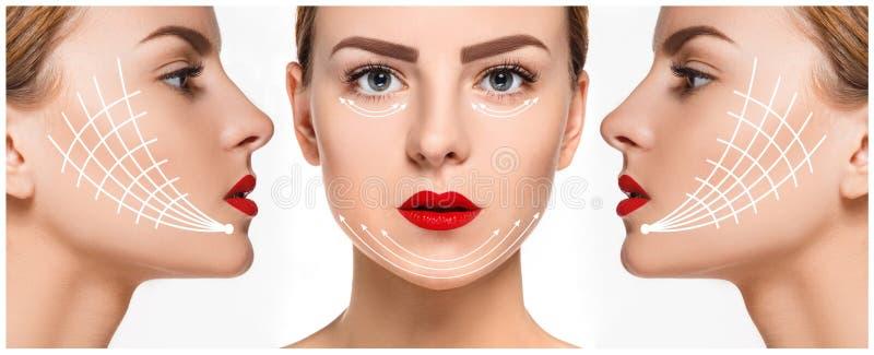 La cara femenina joven Concepto de elevación antienvejecedor y del hilo fotos de archivo