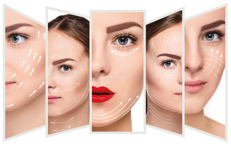La cara femenina joven Concepto de elevación antienvejecedor y del hilo imagen de archivo libre de regalías