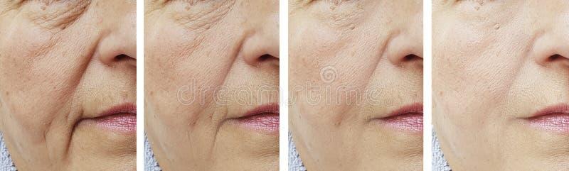 La cara mayor de la mujer arruga antes después del tratamiento foto de archivo