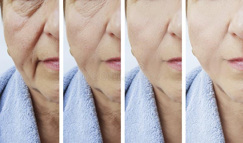 La cara mayor de la mujer arruga resultado antes de procedimiento después del tratamiento foto de archivo
