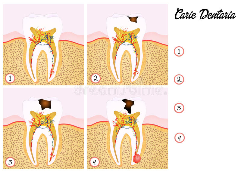 La carie dentaire illustration stock