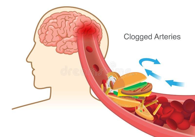 La cause de globule rouge de bloc d'hamburger et de pizza et de pommes frites a obstrué dans l'artère avant dans le cerveau illustration de vecteur